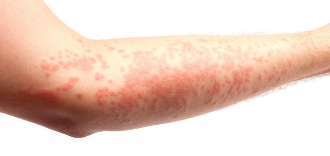 Utricaria (Hives)